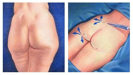 cretan health Liposuction