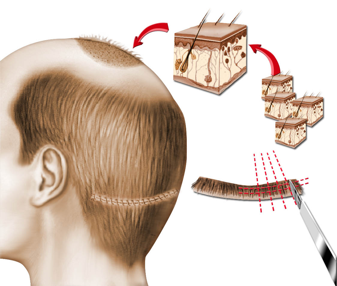 Cretan health hair transplantation